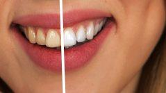 Pon fin a los dientes amarillos