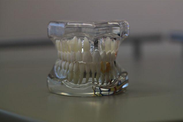 Aprende todos los trucos para cuidar tu prótesis dental