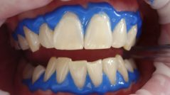 Láser dental para varios tratamientos
