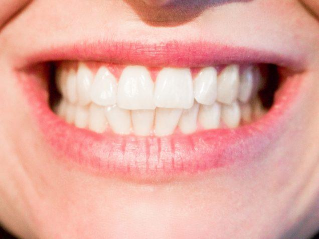 Dental clinic: consejos para tener una boca radiante